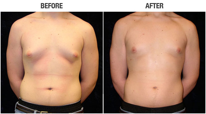 Understanding Male Breast Reduction Surgery, Also Known as Gynecomastia Surgery