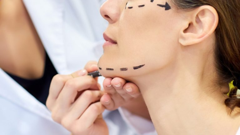 A Face Lift Chicago, Illinois Specialist Says to Follow this Guide Before Investing in a Face Lift